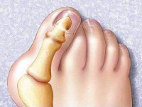 Косточка на ноге лечение лазером