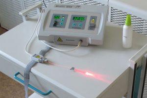Лазерный аппарат для лечения суставов