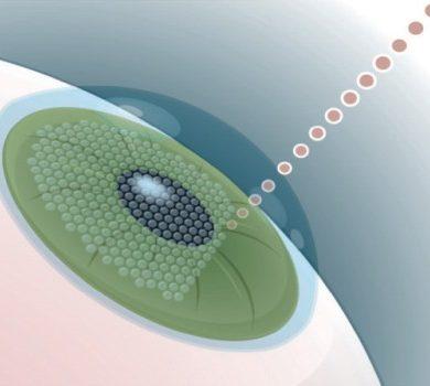 Фемто-Ласик коррекция зрения