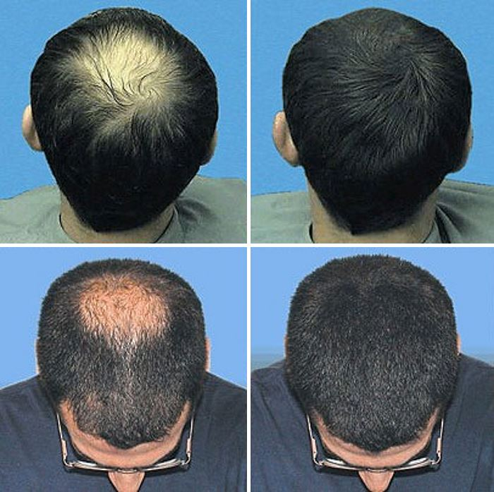 Лазеротерапия волос до и после процедуры