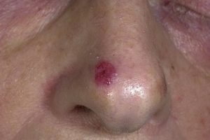 Лечение базалиомы кожи лазером