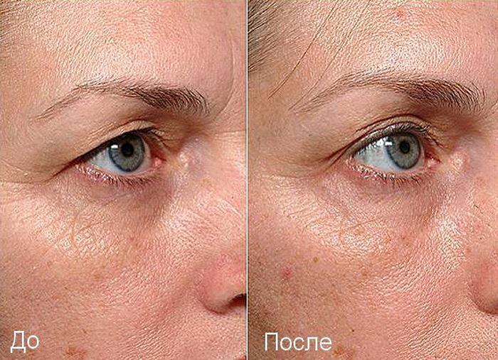 Фото до и после безоперационной блефаропластики