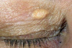 Удаление ксантелазм косметологическим лазером