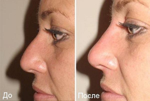 Фото №1. До и после риноластики