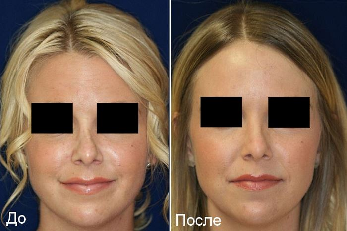 Фото №2. Фото до и после ринопластики