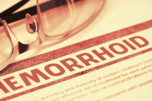Безоперационное лечение геморроя