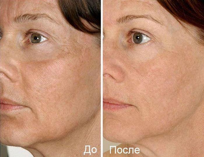 Фото №1 до и после фракционной мезотерапии лица