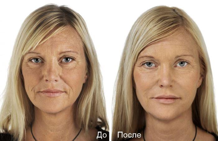 Фото №2 до и после фракционной мезотерапии лица