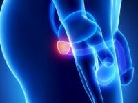 Лечение простатита ультразвуком, современная методика
