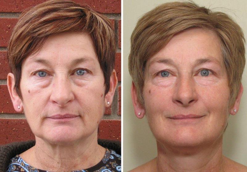 Фото №1. До и после микротоковой терапии