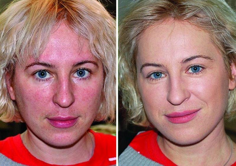 Фото №2. До и после микротоковой терапии