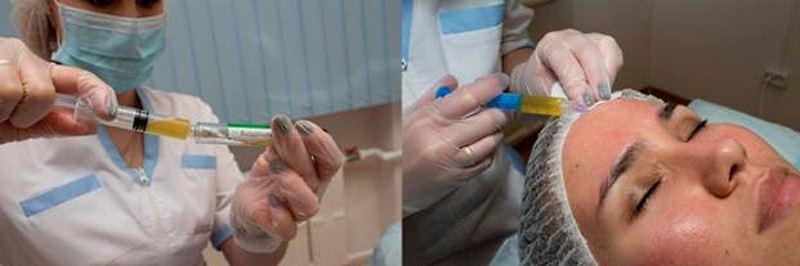 Проведение процедуры плазмотерапии лица