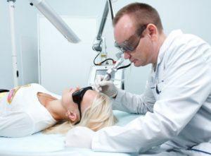 Процедура удаления папилломы лазером