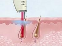 Польза и вред лазерной эпиляции