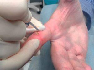 Лазерный метод удаления бородавок