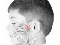 Лазеротерапия при аденоидах