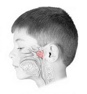 Лазеротерапия при аденоидах у детей
