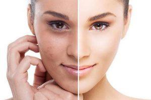 Глубокий пилинг кожи лица