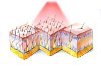 Что лучше лазерная эпиляция или фотоэпиляция?