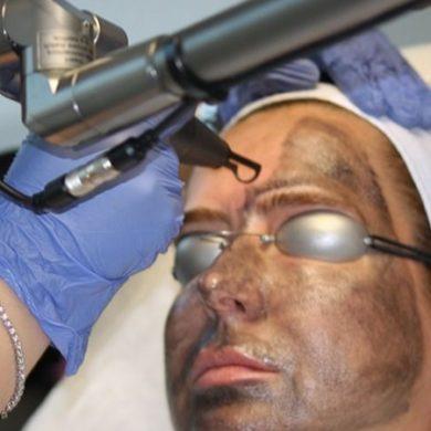 Лазерный карбоновый пилинг лица