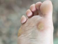 Удаление сухих мозолей и натоптышей на ногах лазером