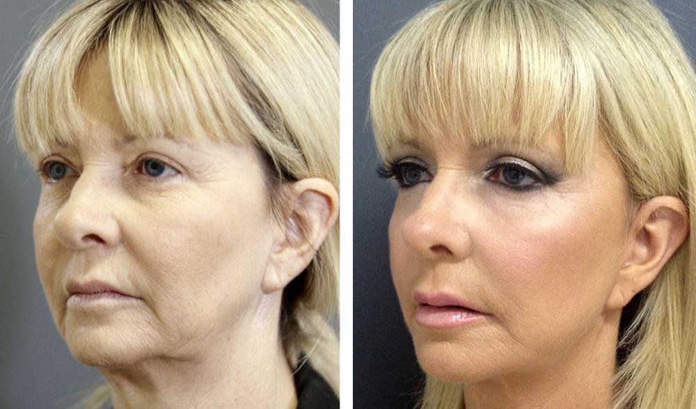 Фотография пациентки до и после тредлифтинга 3D мезонитями