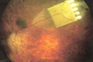 Чипы-импланты для восстановления зрения