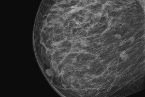 Чем больше вес, тем чаще нужно проходить маммографию