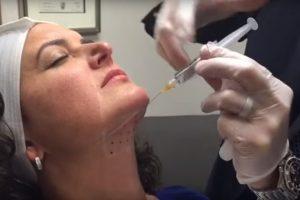 Косметические процедуры, которые дадут быстрый и заметный эффект