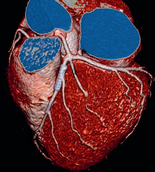 Что лучше для исследования артерий сердца - КТ или МРТ?
