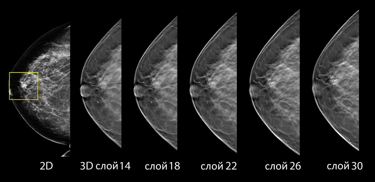 Результаты 3D маммографии