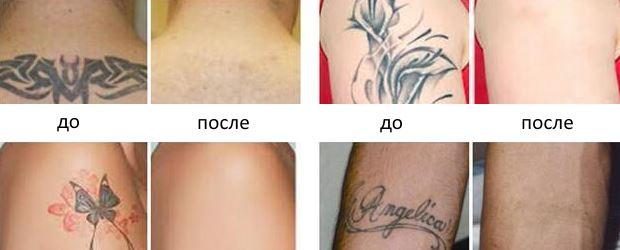 Фото пациентов до и после удаления тату лазером