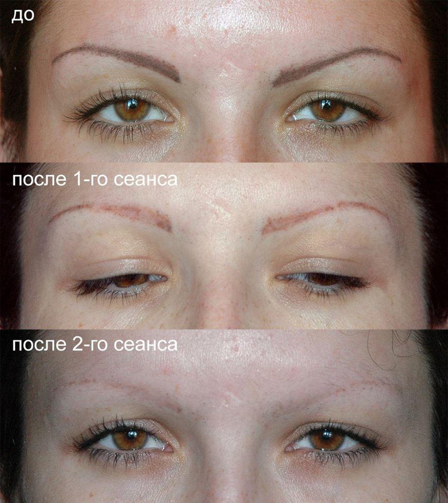 Фото до и после лазерного удаления татуажа