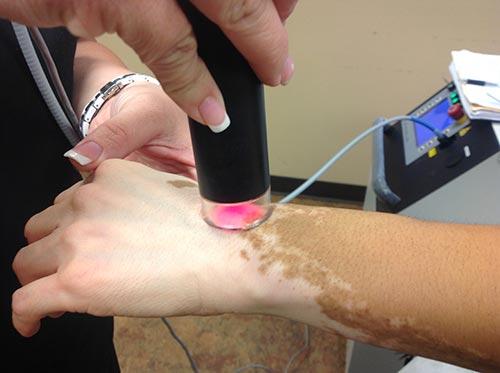 Эффективность XTRAC лазера для лечения псориаза