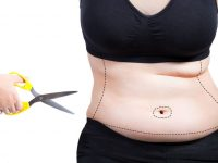 Можно ли похудеть с помощью хирургической операции?