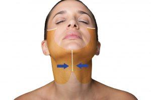 Ритидэктомия шеи и лица