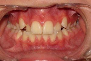 Воздействие гелий-неонового лазера на процесс остеогенеза небного шва при расширении верхней челюсти