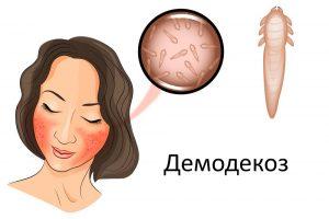 Демодекоз на лице - лечение лазером