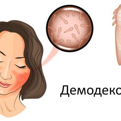 Лечение демодекоза лазером