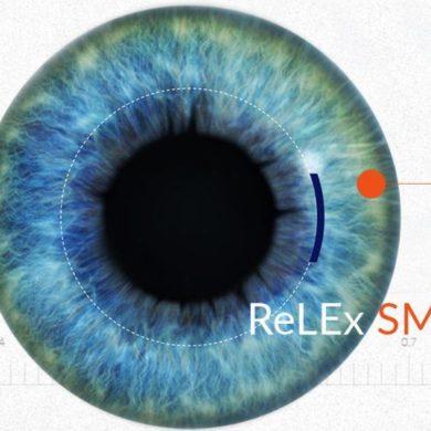 ReLEx SMILE лазерная коррекция зрения