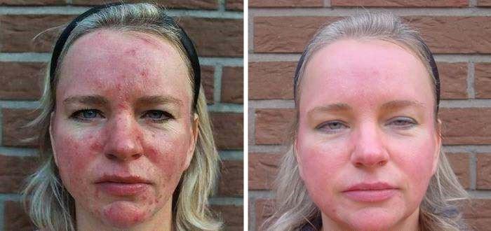 Фото до и после лазерной терапии при лечении демодекоза