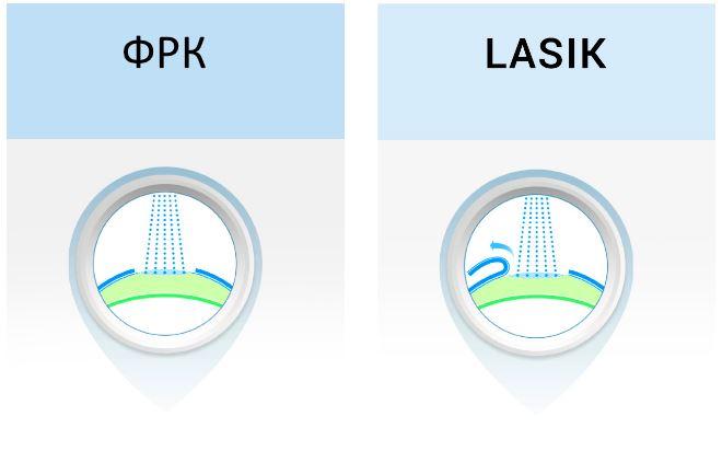 Чем отличается ФРК от Ласик