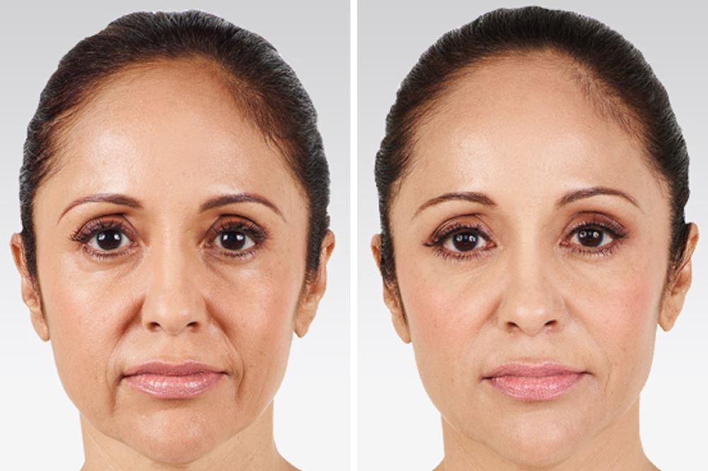 Фото до и после применения Juvederm Hydrate