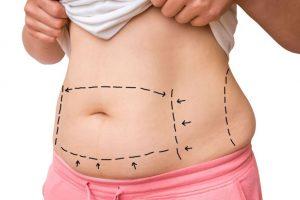 Абдоминопластика живота - что вас ждет до и после операции