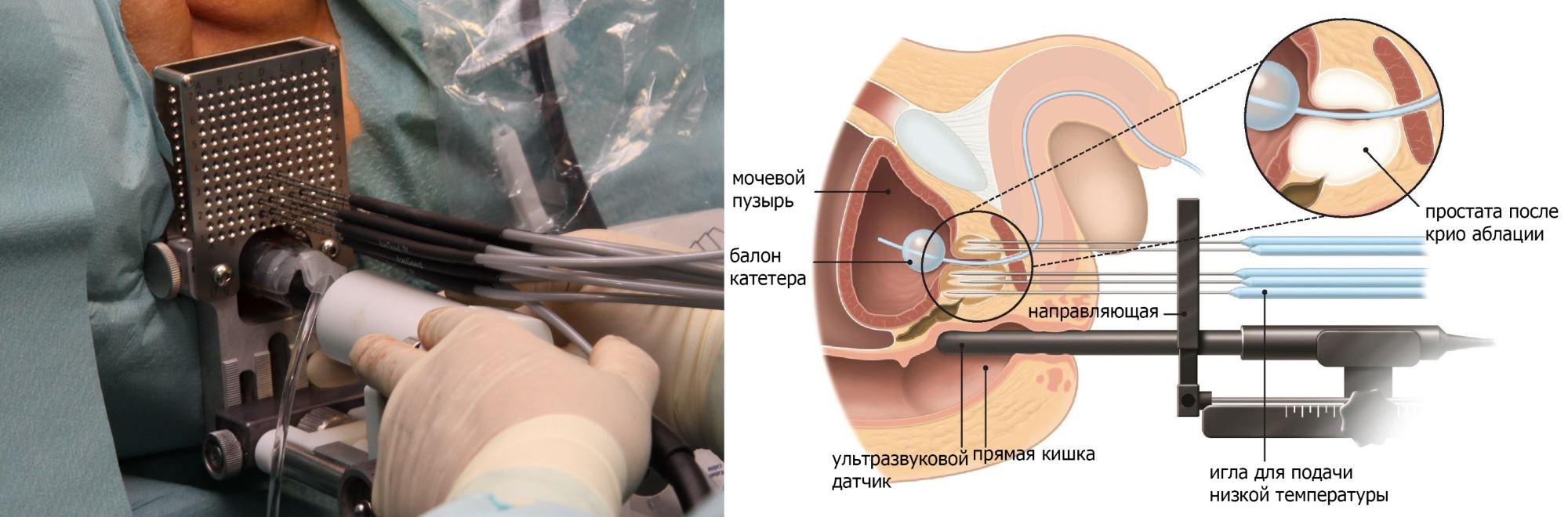 Криохирургия при раке простаты
