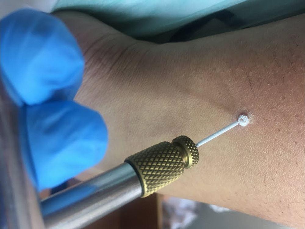 Криохирургия при новообразованиях кожи