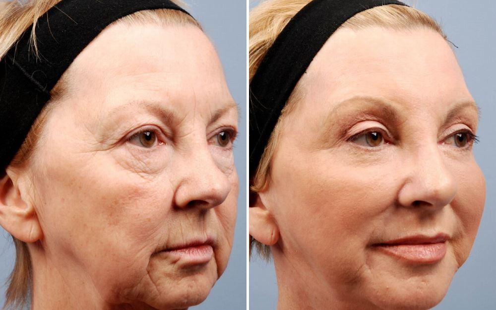 Фото №2 до и после блефаропластики