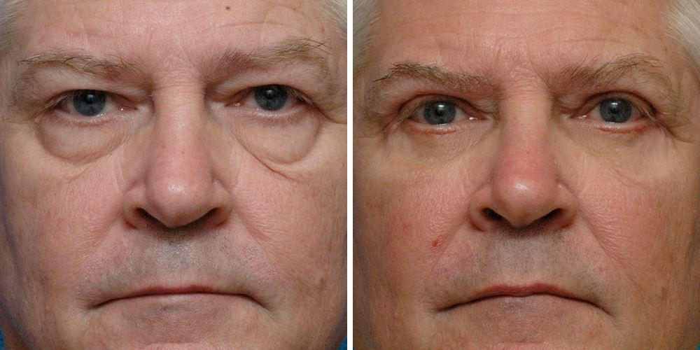 Фото №3 до и после блефаропластики