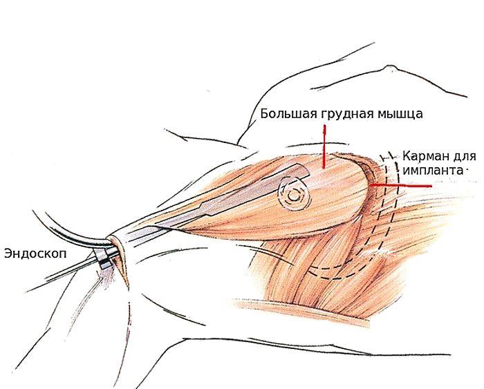 Проведение операции по увеличению груди эндоскопическим методом