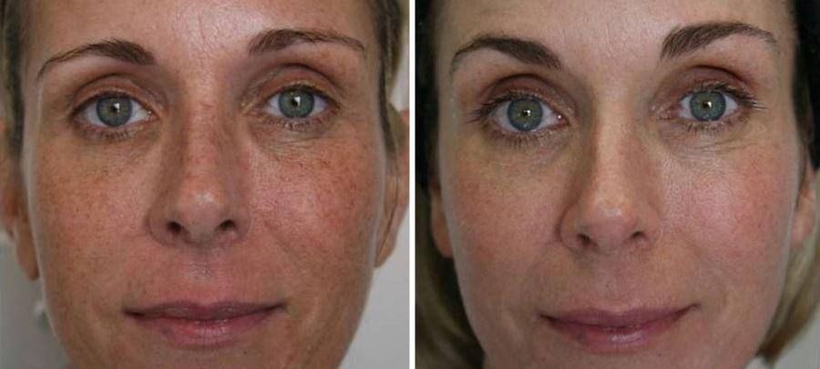 Фото №1 - до и после фраксель лазерной терапии